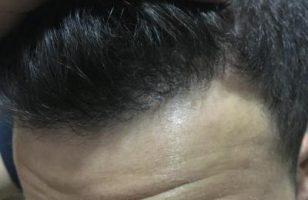 hair-restoration-cost (12)