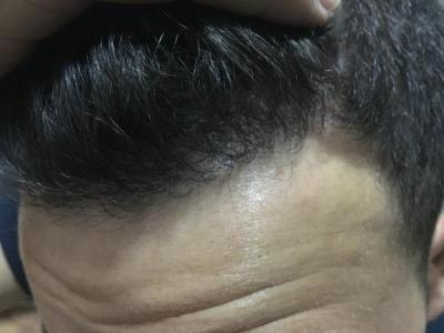 3000 GRAFTS FUE RESULTS-DR.ZEKERIYA KUL ISTANBUL