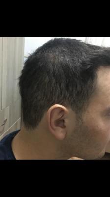 hair-restoration-cost (16)