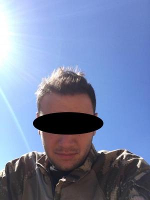 hair-restoration-cost (17)