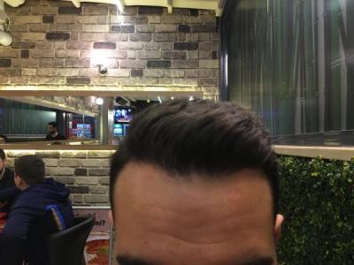 hair-restoration-cost (22)