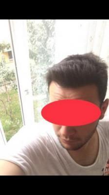 hair-restoration-cost (25)