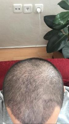 hair-restoration-cost (4)