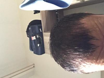 hair-restoration-cost (7)