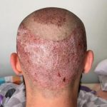 hair-restoration-istanbul (1)