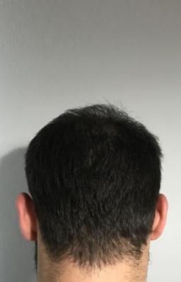 hair-restoration-istanbul (11)