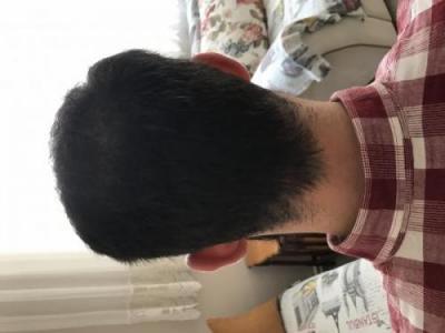 hair-restoration-istanbul (12)
