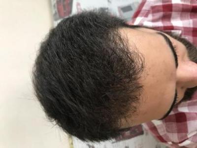 hair-restoration-istanbul (13)