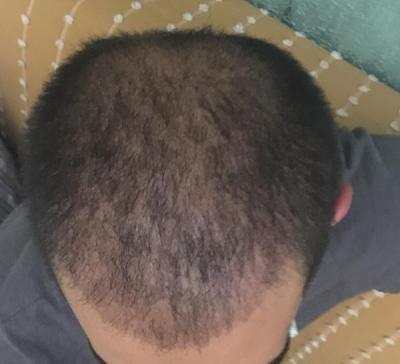 hair-restoration-istanbul (15)