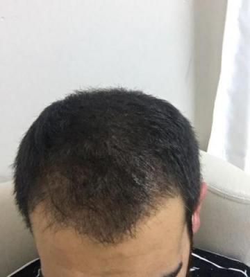 hair-restoration-istanbul (19)