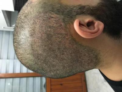 hair-restoration-istanbul (2)