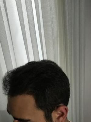 hair-restoration-istanbul (3)