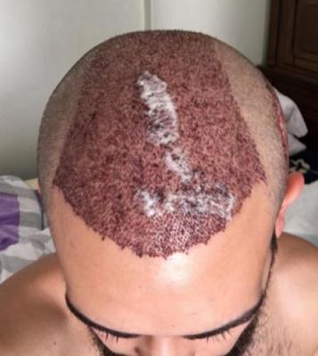 hair-restoration-istanbul (4)