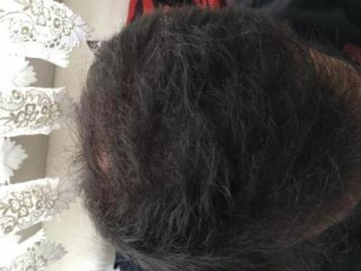hair-restoration-istanbul (5)