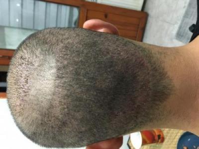 hair-restoration-istanbul (6)