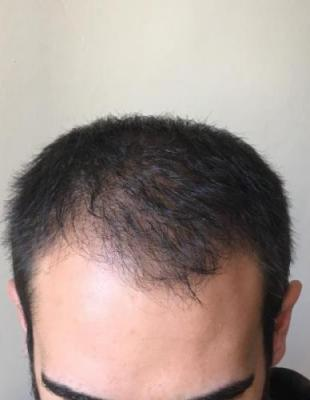 hair-restoration-istanbul (7)