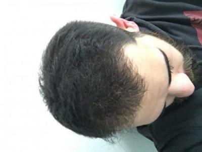 hair-restoration-istanbul (9)