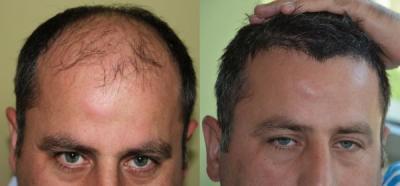 hair-transplant-antalya-turkey (11)
