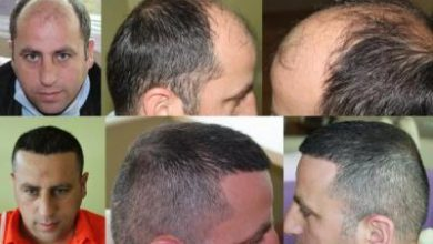 hair-transplant-antalya-turkey (12)
