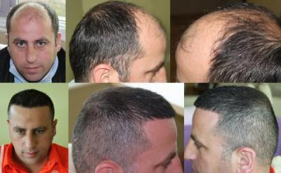 DR. HAKAN DOGANAY-TWO OPERATIONS 8384 GRAFTS