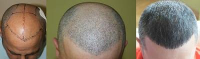 hair-transplant-antalya-turkey (13)