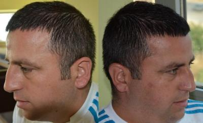 hair-transplant-antalya-turkey (14)