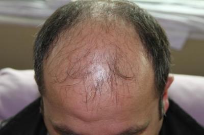 hair-transplant-antalya-turkey (16)