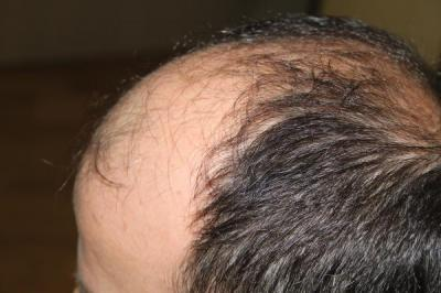 hair-transplant-antalya-turkey (17)