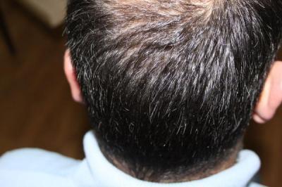 hair-transplant-antalya-turkey (18)