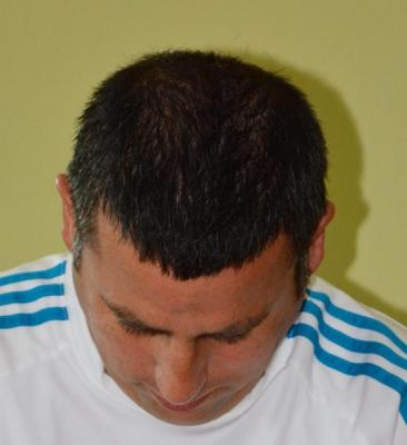 hair-transplant-antalya-turkey (2)