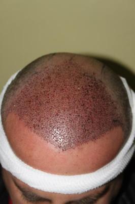 hair-transplant-antalya-turkey (21)