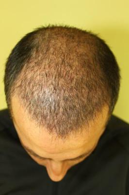 hair-transplant-antalya-turkey (23)