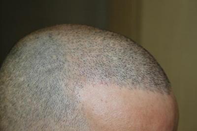 hair-transplant-antalya-turkey (24)