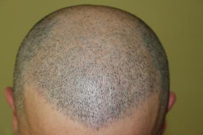 hair-transplant-antalya-turkey (25)