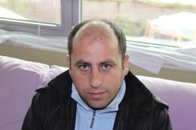 hair-transplant-antalya-turkey (3)