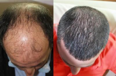hair-transplant-antalya-turkey (5)