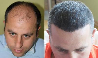 hair-transplant-antalya-turkey (7)