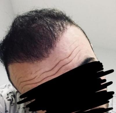 hair-transplant-cost-turkey (1)