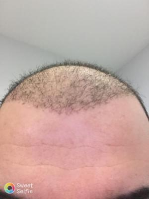 hair-transplant-cost-turkey (10)
