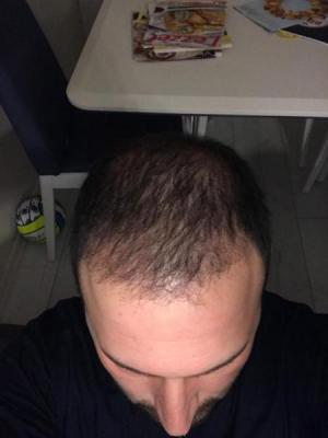 hair-transplant-cost-turkey (11)