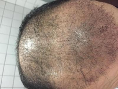 hair-transplant-cost-turkey (12)