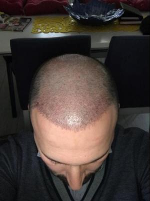 hair-transplant-cost-turkey (13)