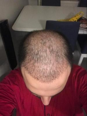 hair-transplant-cost-turkey (14)
