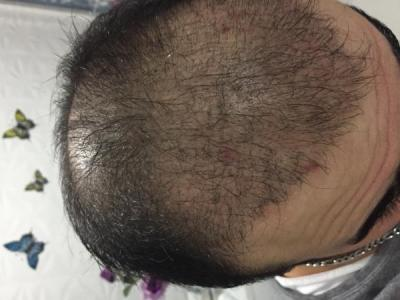 hair-transplant-cost-turkey (15)