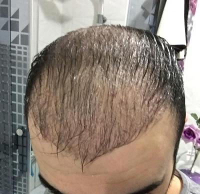 hair-transplant-cost-turkey (16)