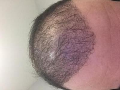 hair-transplant-cost-turkey (17)