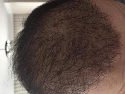 hair-transplant-cost-turkey (18)