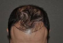 hair-transplant-cost-turkey (19)