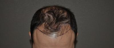 ESTE WORLD ISTANBUL HAIR TRANSPLANT 3800 GRAFTS FUE