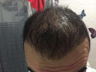hair-transplant-cost-turkey (2)